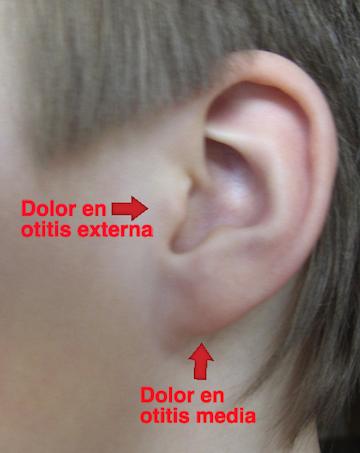 El dolor de oídos despierta al niño Sueño