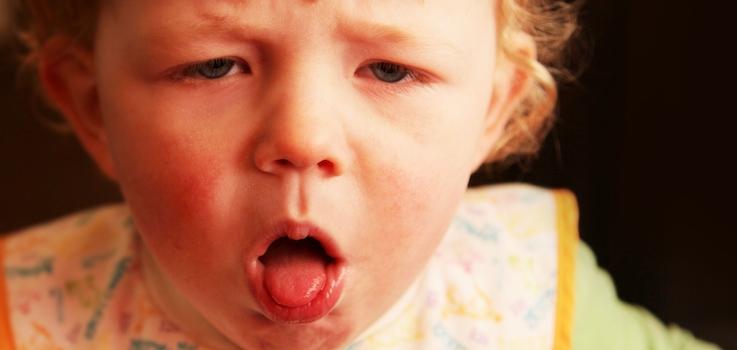 Laringitis aguda en niños y bebés, Causas de la Laringitis, Síntomas de la Laringitis, Tratamiento de la Laringitis