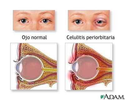 que es la celulitis infecciosa en el ojo