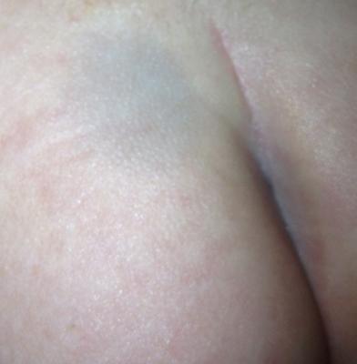 Mancha azul en la piel de un recién nacido