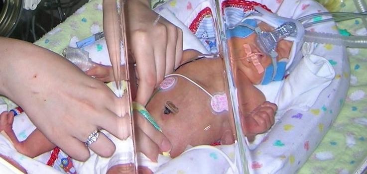 Ser padres de un bebé prematuro
