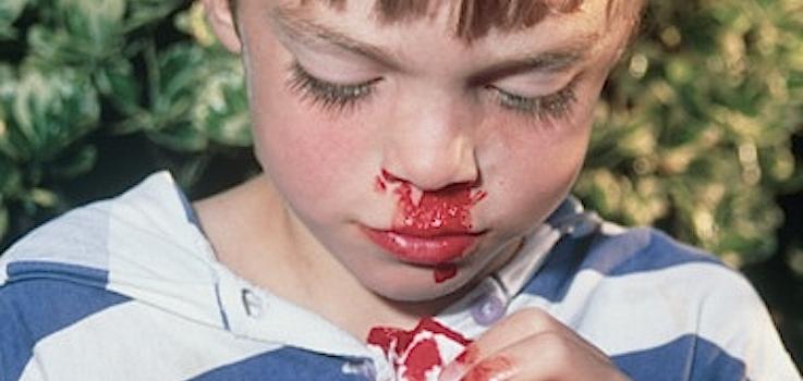 Sangra la nariz del niño