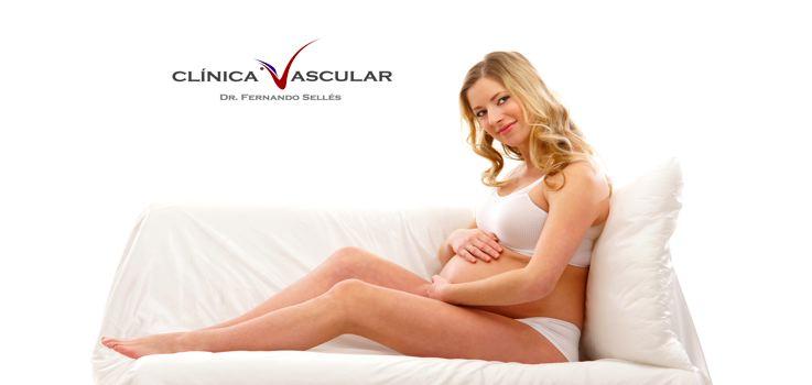 Las Varices en el Embarazo ¿Cómo evitarlas?