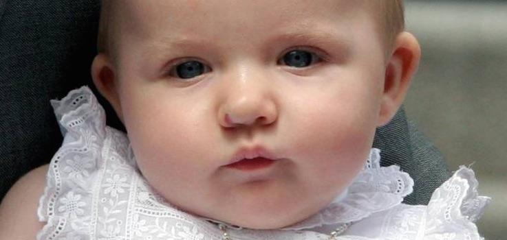 Hemangioma evolutivo de la Infancia en la nariz de la Infanta Leonor